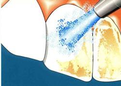 Профессиональная чистка зубов Казань