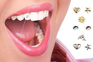 Украшения для зубов в Казани
