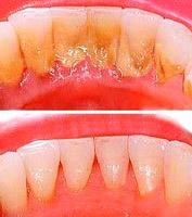 Удаление зубного камня в Казани