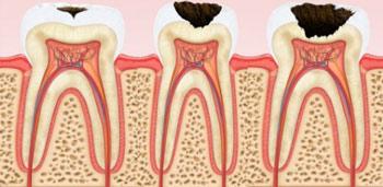Лечение кариеса зубов Казань