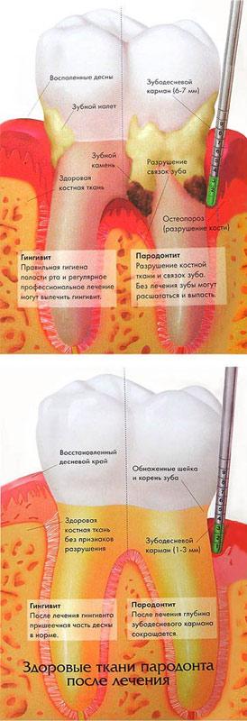 Лечение пародонтита в Казани