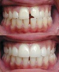 Реставрация зубов Казань