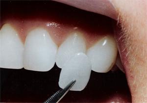 Зубные виниры в Казани